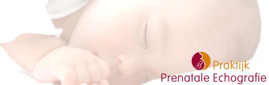 Pretecho Praktijk Prenatale Echografie Rosmalen
